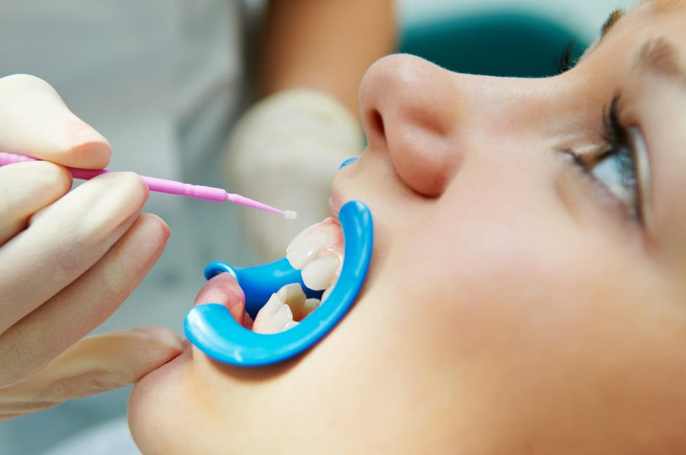 patient receiving dental sealant treatment