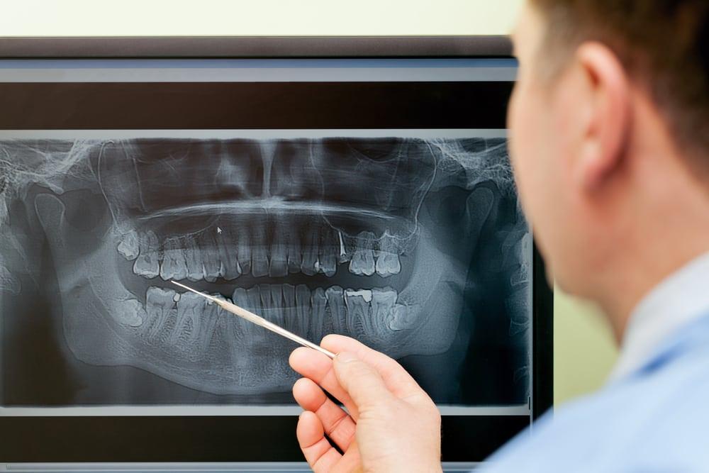 doctor examining dental x-rays