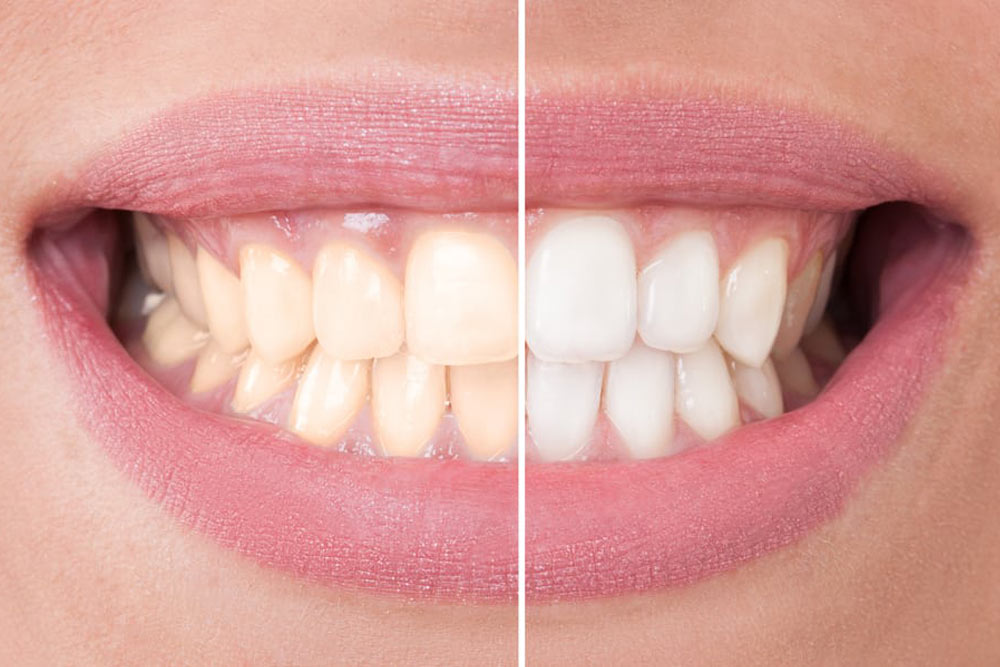 before and after dental whitening treatment