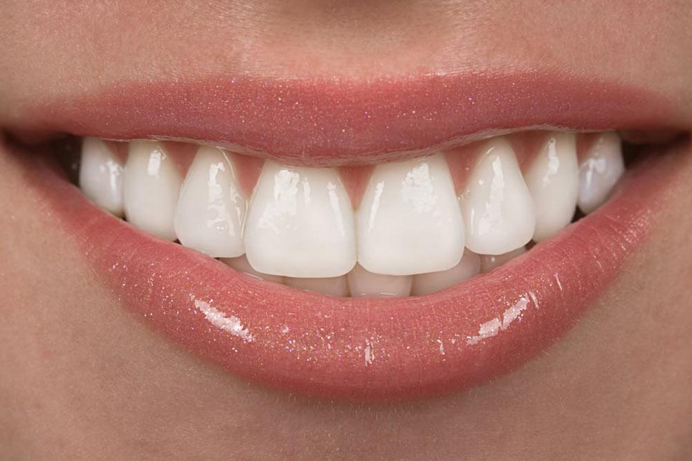 close up of teeth after veneer treatment