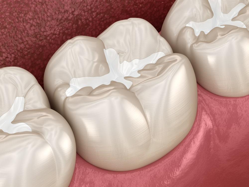 dental sealant on tooth