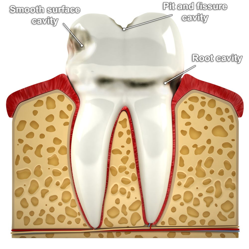 different types of cavities