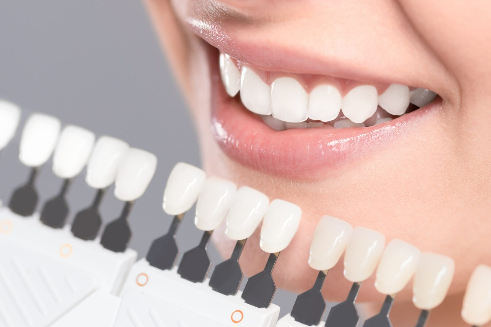 shade guide for whitening