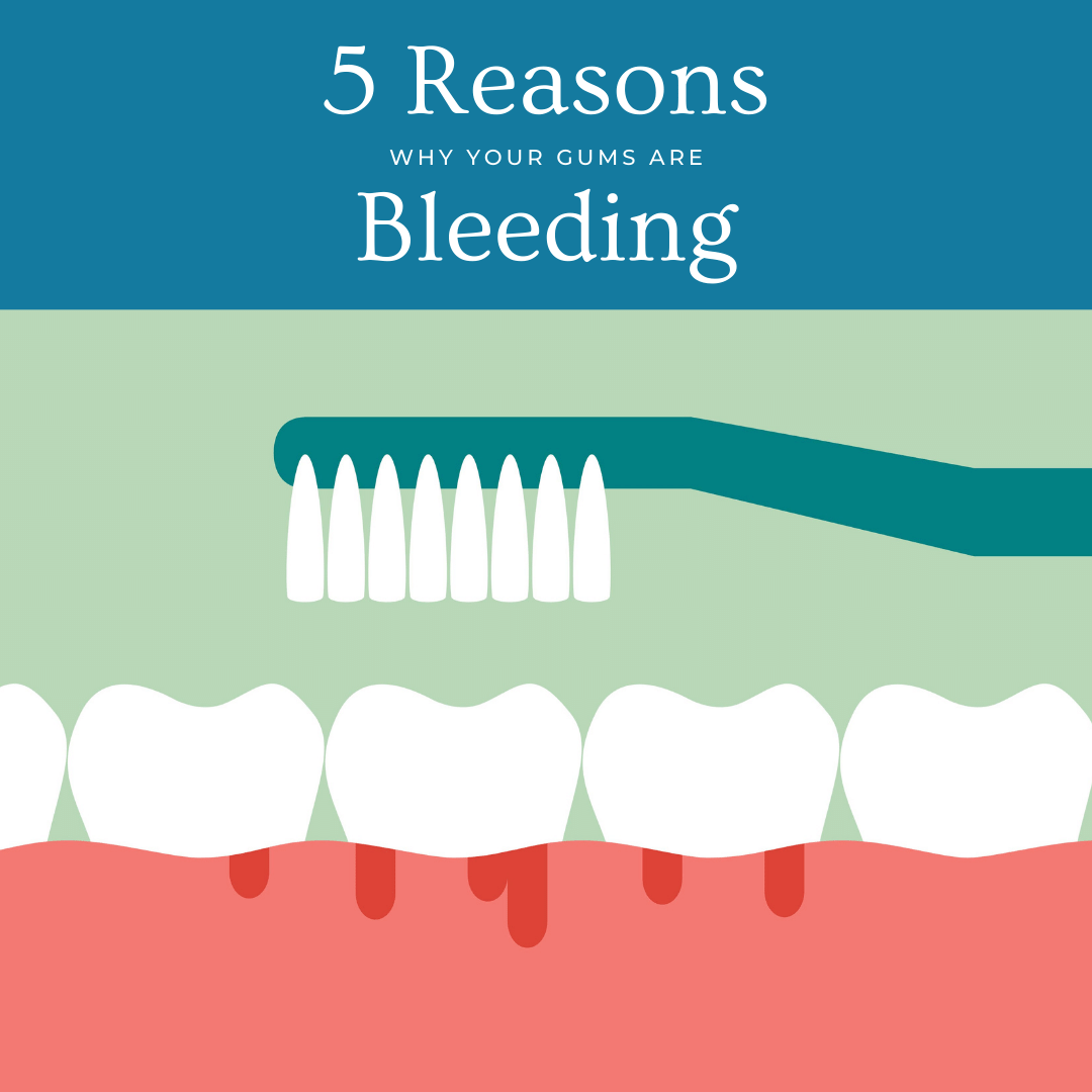 5 Reasons why gums bleed