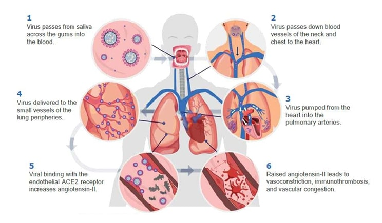 how COVID reaches the lungs through the bloodstream