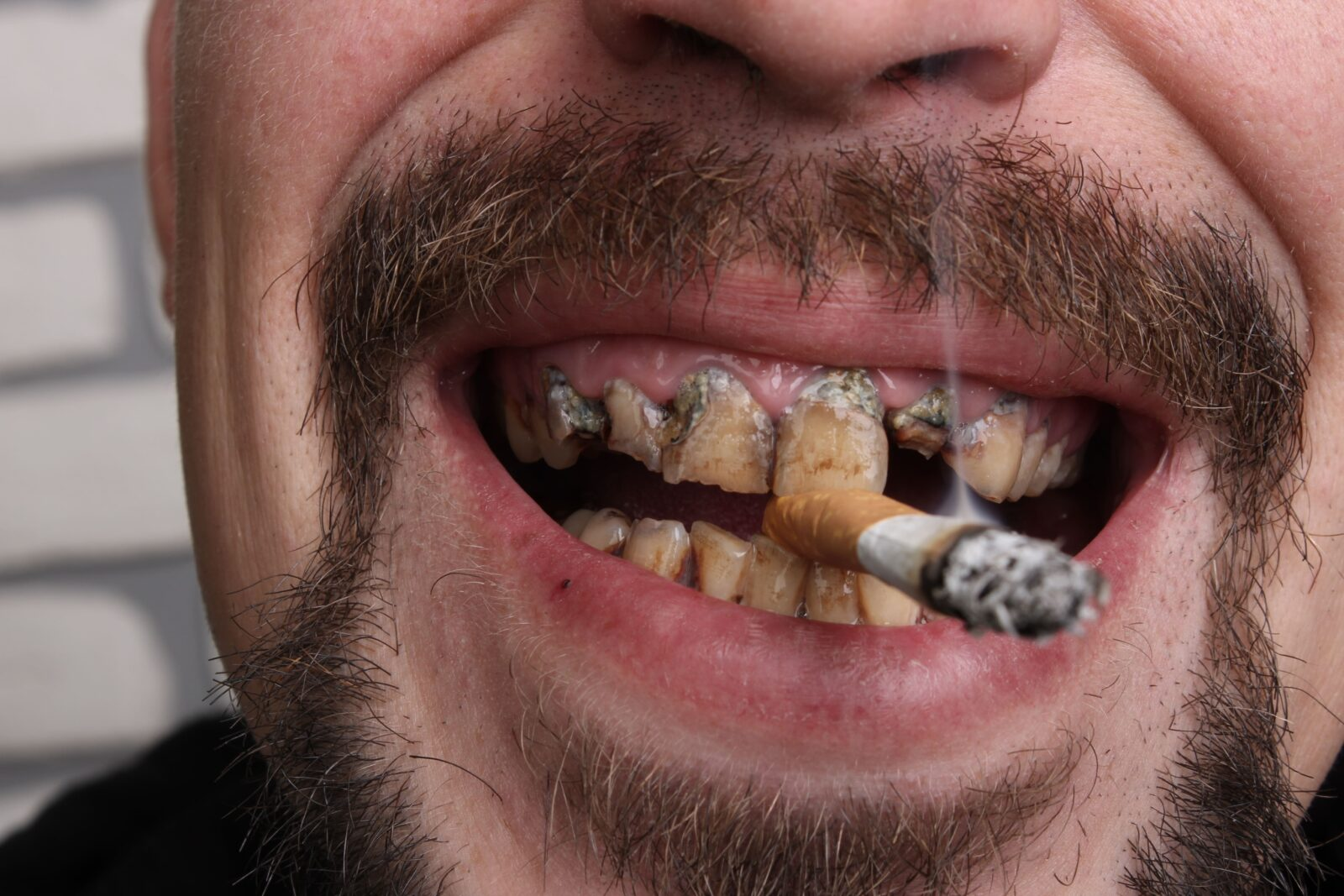 man smoking with stained teeth